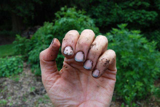 Самые грязные ногти