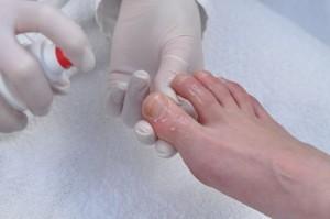 Обработка ногтей от грибка