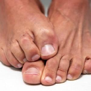 Грибок на ногтях ног