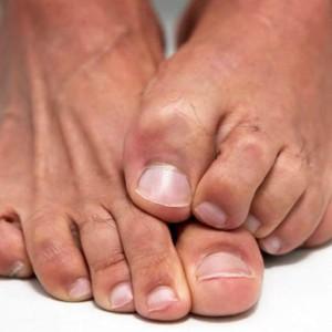 Вросший ноготь лечение киров