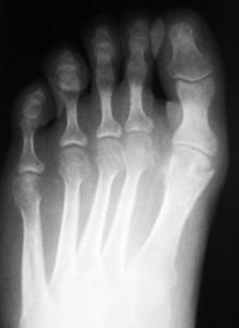 Рентген